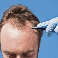Решающий фактор: доступная стоимость пересадки волос в Турции