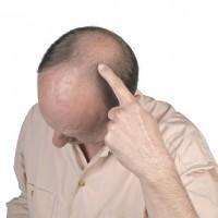 Классический вид выпадения волос – Андрогенная Алопеция