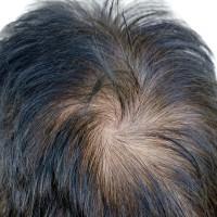 Единственный метод лечения выпадения волос- это пересадка волос техникой FUE