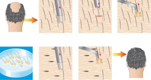 способ проведения процедуры пересадки волос